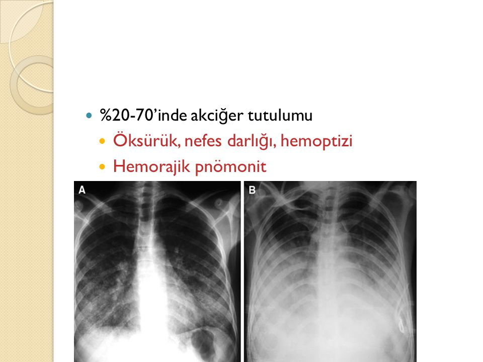 %20-70'inde akci ğ er tutulumu Öksürük, nefes darlı ğ ı, hemoptizi Hemorajik pnömonit -ARDS'ye kadar
