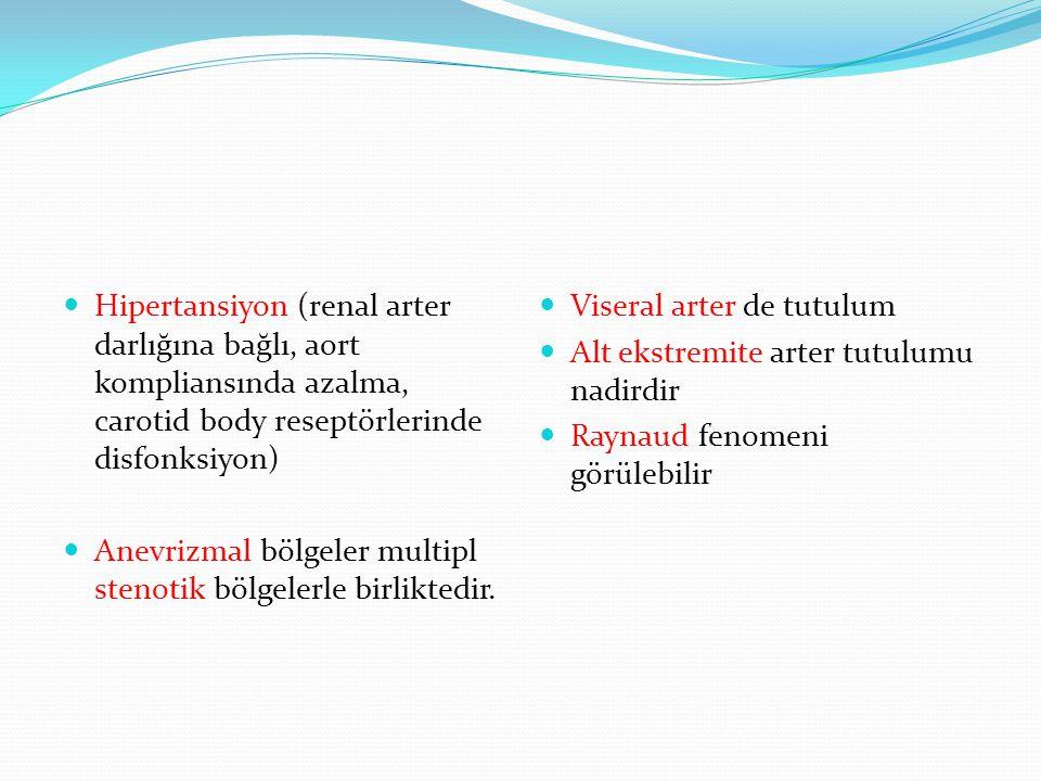 Hipertansiyon (renal arter darlığına bağlı, aort kompliansında azalma, carotid body reseptörlerinde disfonksiyon) Anevrizmal bölgeler multipl stenotik