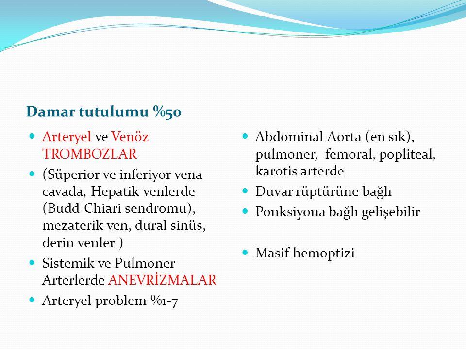 Damar tutulumu %50 Arteryel ve Venöz TROMBOZLAR (Süperior ve inferiyor vena cavada, Hepatik venlerde (Budd Chiari sendromu), mezaterik ven, dural sinü