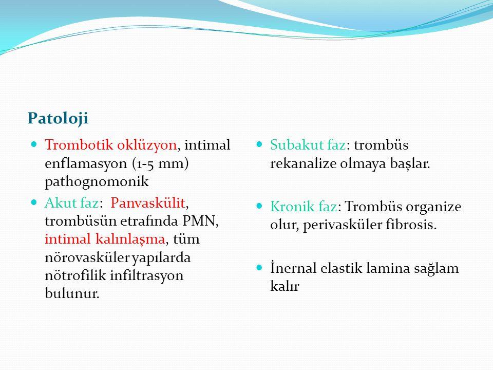 Patoloji Trombotik oklüzyon, intimal enflamasyon (1-5 mm) pathognomonik Akut faz: Panvaskülit, trombüsün etrafında PMN, intimal kalınlaşma, tüm nörova