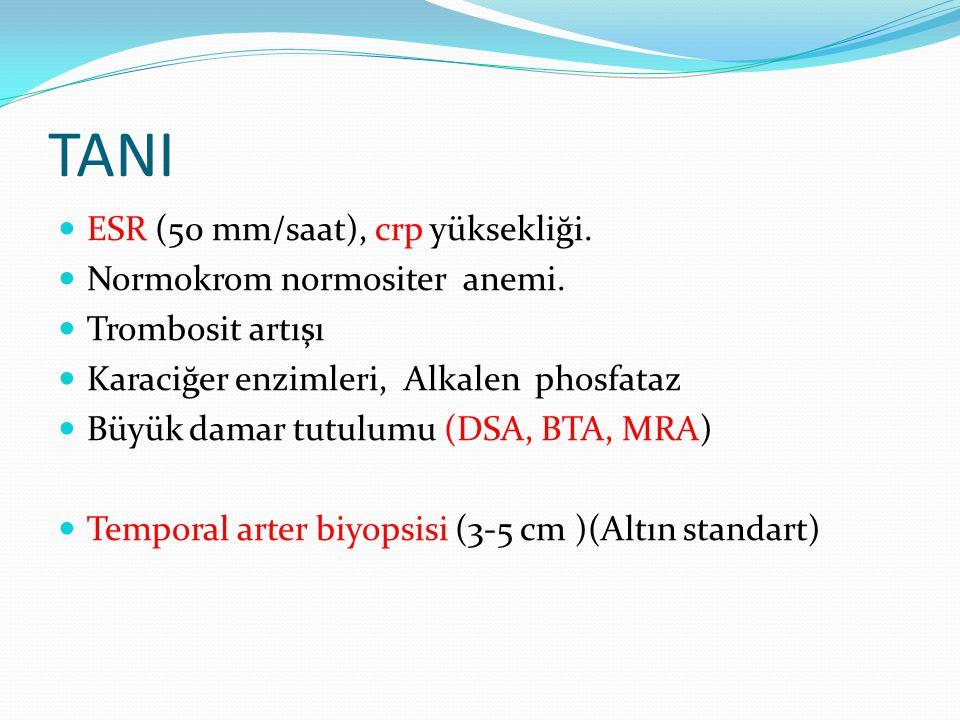 TANI ESR (50 mm/saat), crp yüksekliği. Normokrom normositer anemi. Trombosit artışı Karaciğer enzimleri, Alkalen phosfataz Büyük damar tutulumu (DSA,