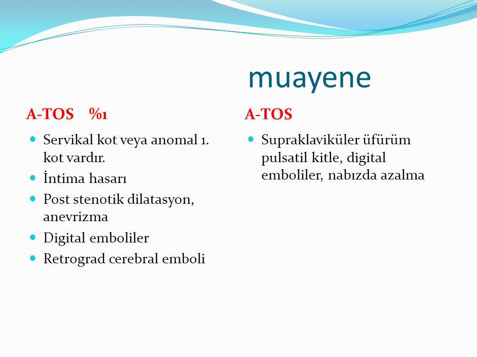 muayene A-TOS %1 A-TOS Servikal kot veya anomal 1. kot vardır. İntima hasarı Post stenotik dilatasyon, anevrizma Digital emboliler Retrograd cerebral