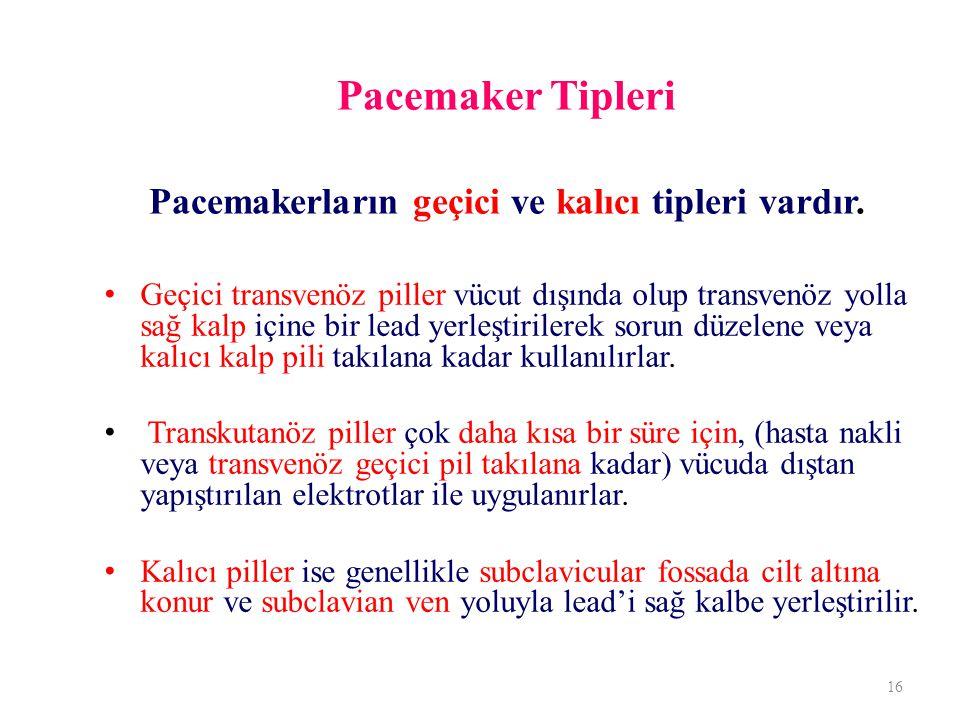 Pacemaker Tipleri Pacemakerların geçici ve kalıcı tipleri vardır. Geçici transvenöz piller vücut dışında olup transvenöz yolla sağ kalp içine bir lead