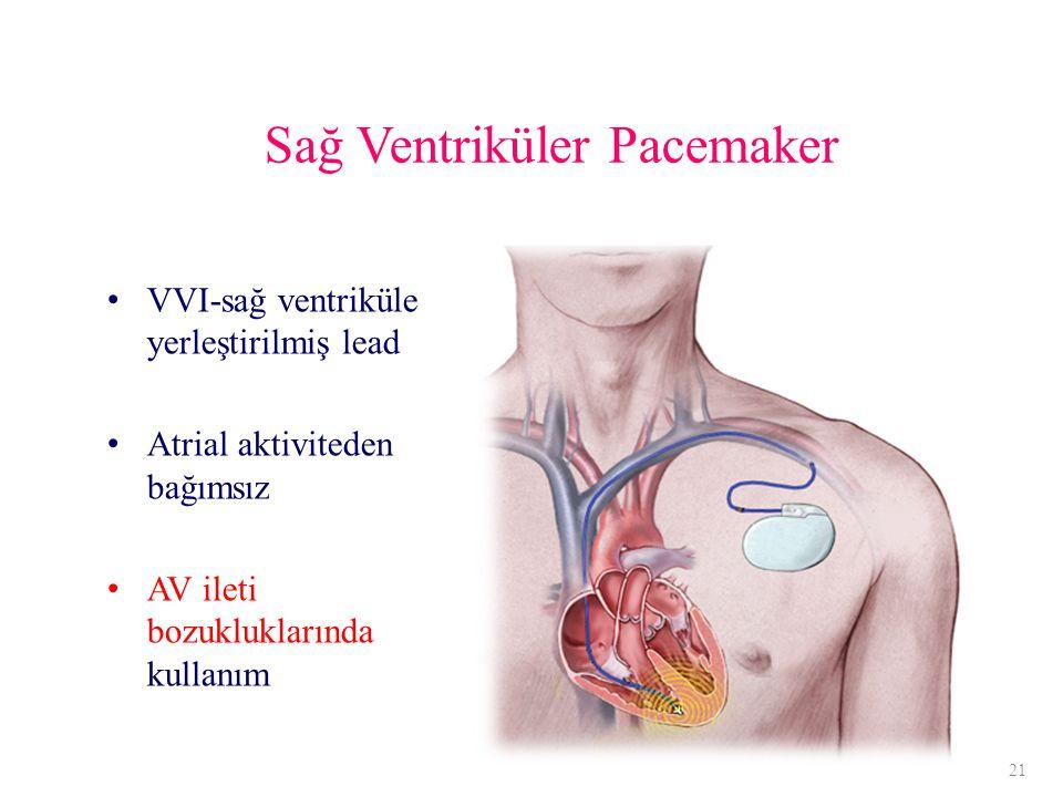 Sağ Ventriküler Pacemaker VVI-sağ ventriküle yerleştirilmiş lead Atrial aktiviteden bağımsız AV ileti bozukluklarında kullanım 21