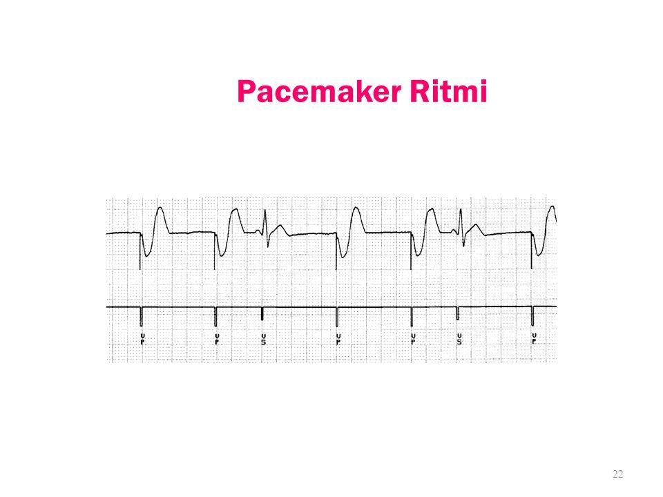 Pacemaker Ritmi 22
