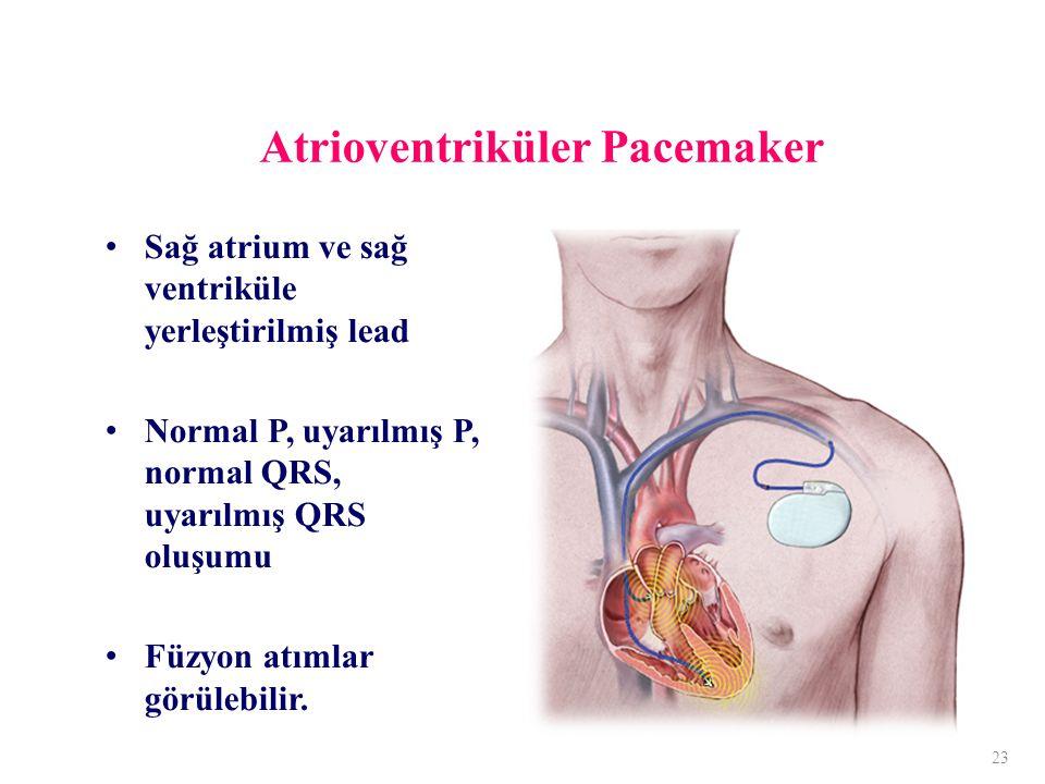Atrioventriküler Pacemaker Sağ atrium ve sağ ventriküle yerleştirilmiş lead Normal P, uyarılmış P, normal QRS, uyarılmış QRS oluşumu Füzyon atımlar görülebilir.