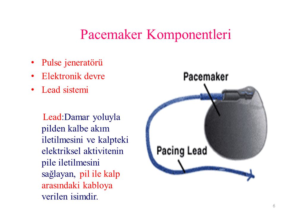 Pacemaker Komponentleri Pulse jeneratörü Elektronik devre Lead sistemi Lead:Damar yoluyla pilden kalbe akım iletilmesini ve kalpteki elektriksel aktivitenin pile iletilmesini sağlayan, pil ile kalp arasındaki kabloya verilen isimdir.