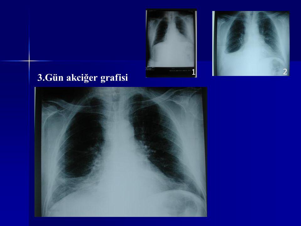 3.Gün akciğer grafisi 1 2