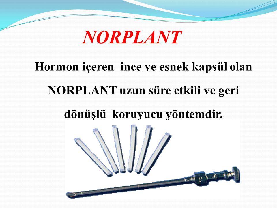 Hormon içeren ince ve esnek kapsül olan NORPLANT uzun süre etkili ve geri dönüşlü koruyucu yöntemdir. NORPLANT