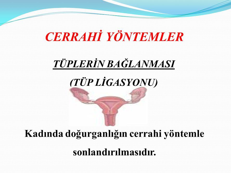 CERRAHİ YÖNTEMLER TÜPLERİN BAĞLANMASI (TÜP LİGASYONU) Kadında doğurganlığın cerrahi yöntemle sonlandırılmasıdır.