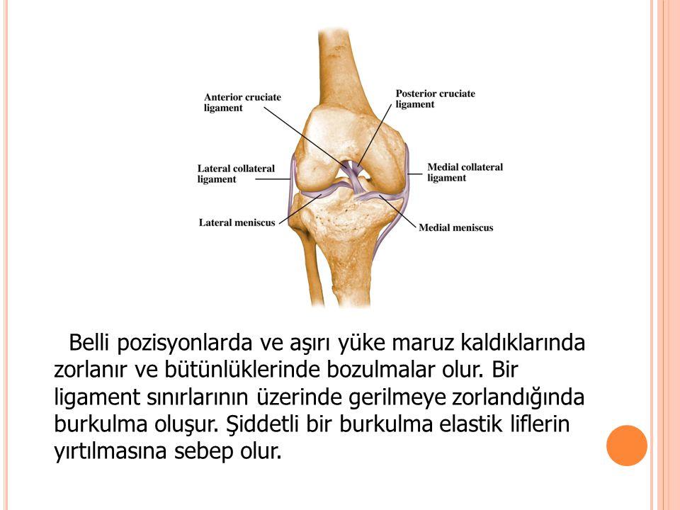 Belli pozisyonlarda ve aşırı yüke maruz kaldıklarında zorlanır ve bütünlüklerinde bozulmalar olur. Bir ligament sınırlarının üzerinde gerilmeye zorlan
