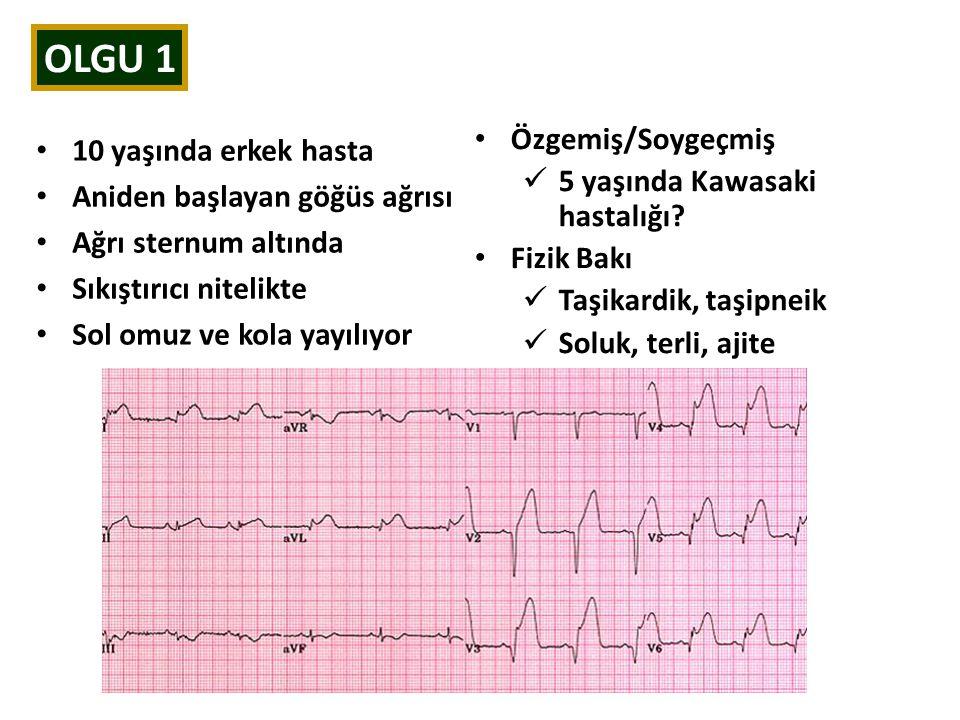 OLGU 1 10 yaşında erkek hasta Aniden başlayan göğüs ağrısı Ağrı sternum altında Sıkıştırıcı nitelikte Sol omuz ve kola yayılıyor Özgemiş/Soygeçmiş 5 yaşında Kawasaki hastalığı.