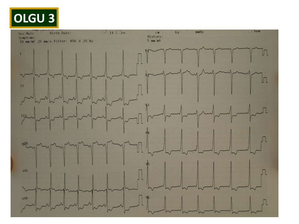 OLGU 3 14 yaşında erkek hasta Eforla göğüs ağrısı tarifliyor, dinlenince geçiyor Ağrı sternum altında, baskı gibi hissediyor FB'da 1-2/6 sistolik üfür