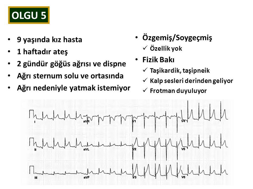OLGU 5 9 yaşında kız hasta 1 haftadır ateş 2 gündür göğüs ağrısı ve dispne Ağrı sternum solu ve ortasında Ağrı nedeniyle yatmak istemiyor Özgemiş/Soyg