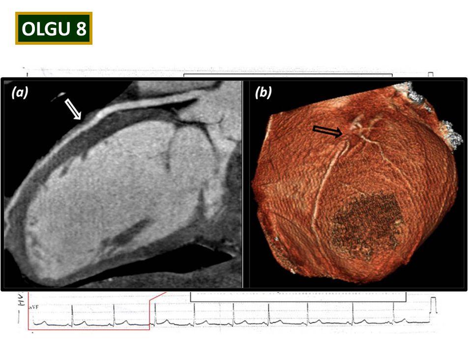 OLGU 8 Özgeçmiş/Soygeçmiş: Özellik yok Fizik Bakı: Normal EKG: İnferior derivasyonlarda erken repolarizasyon paterni (+) TELE: N Laboratuvar: Troponin 0.42 ng/ml EKO: N