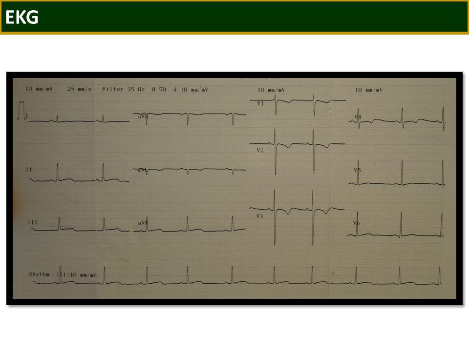 OLGU 5 9 yaşında kız hasta 1 haftadır ateş 2 gündür göğüs ağrısı ve dispne Ağrı sternum solu ve ortasında Ağrı nedeniyle yatmak istemiyor Özgemiş/Soygeçmiş Özellik yok Fizik Bakı Taşikardik, taşipneik Kalp sesleri derinden geliyor Frotman duyuluyor