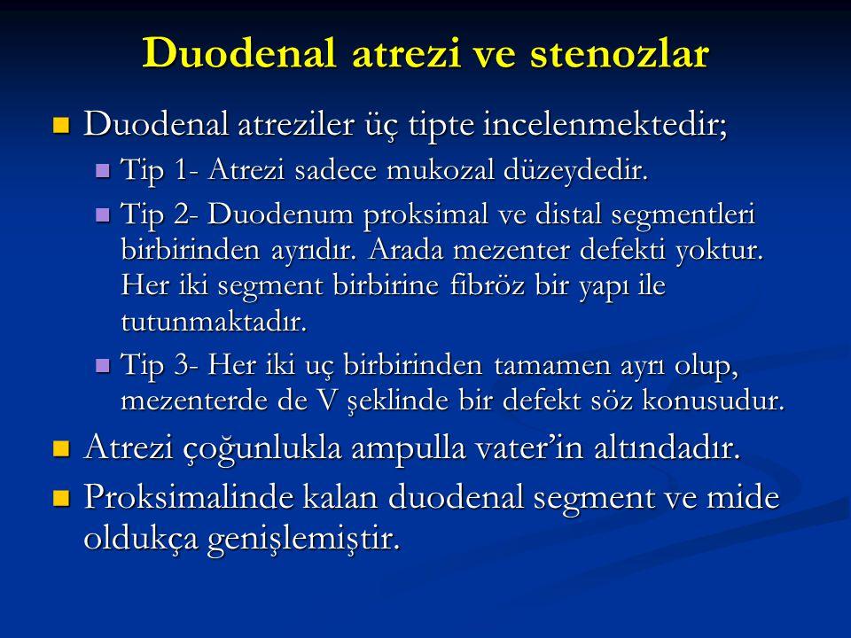 Duodenal atrezi ve stenozlar Duodenal atreziler üç tipte incelenmektedir; Duodenal atreziler üç tipte incelenmektedir; Tip 1- Atrezi sadece mukozal dü