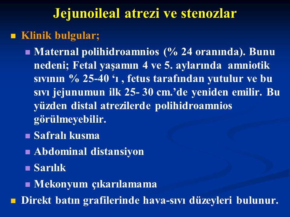 Jejunoileal atrezi ve stenozlar Klinik bulgular; Maternal polihidroamnios (% 24 oranında). Bunu nedeni; Fetal yaşamın 4 ve 5. aylarında amniotik sıvın