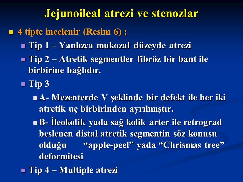 Jejunoileal atrezi ve stenozlar 4 tipte incelenir (Resim 6) ; 4 tipte incelenir (Resim 6) ; Tip 1 – Yanlızca mukozal düzeyde atrezi Tip 1 – Yanlızca m