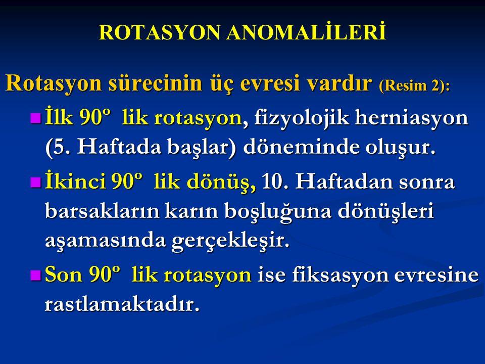 ROTASYON ANOMALİLERİ Rotasyon sürecinin üç evresi vardır (Resim 2): İlk 90º lik rotasyon, fizyolojik herniasyon (5. Haftada başlar) döneminde oluşur.