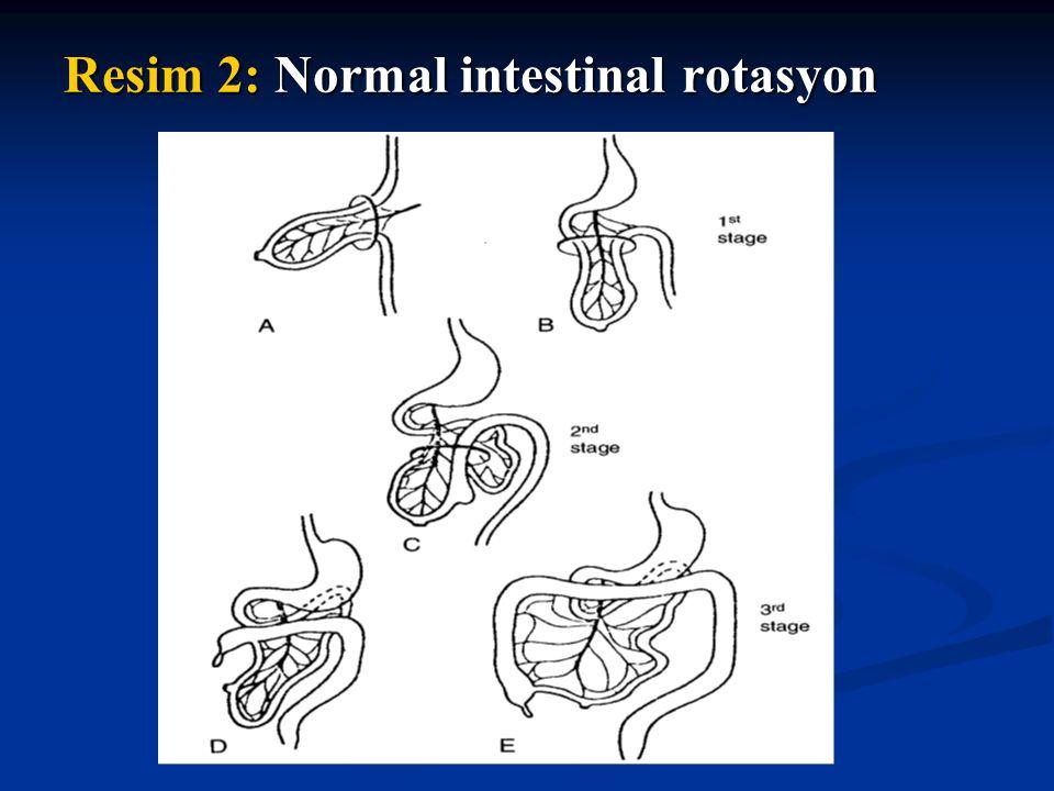 Resim 3: Malrotasyonlu midgut volvulusunun patofizyolojisi.