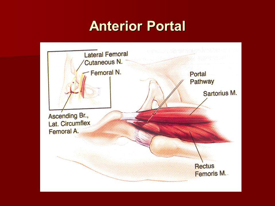 Anterior Portal