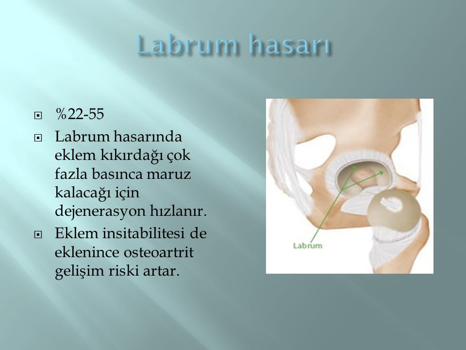  %22-55  Labrum hasarında eklem kıkırdağı çok fazla basınca maruz kalacağı için dejenerasyon hızlanır.  Eklem insitabilitesi de eklenince osteoartr
