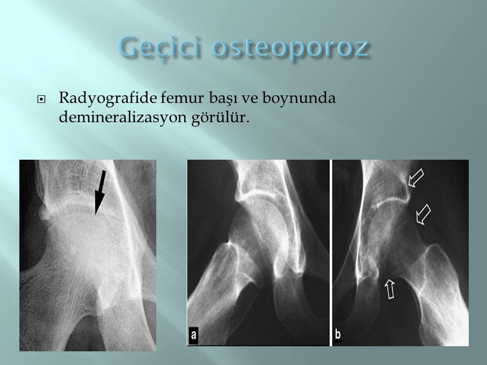 Radyografide femur başı ve boynunda demineralizasyon görülür.
