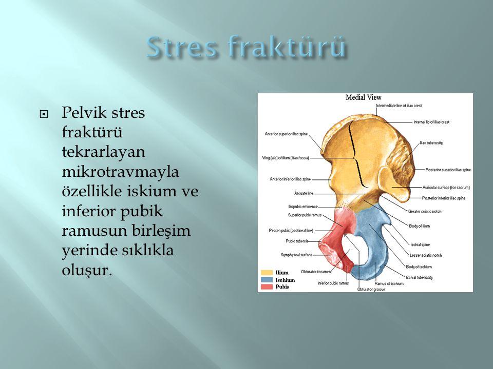  Pelvik stres fraktürü tekrarlayan mikrotravmayla özellikle iskium ve inferior pubik ramusun birleşim yerinde sıklıkla oluşur.