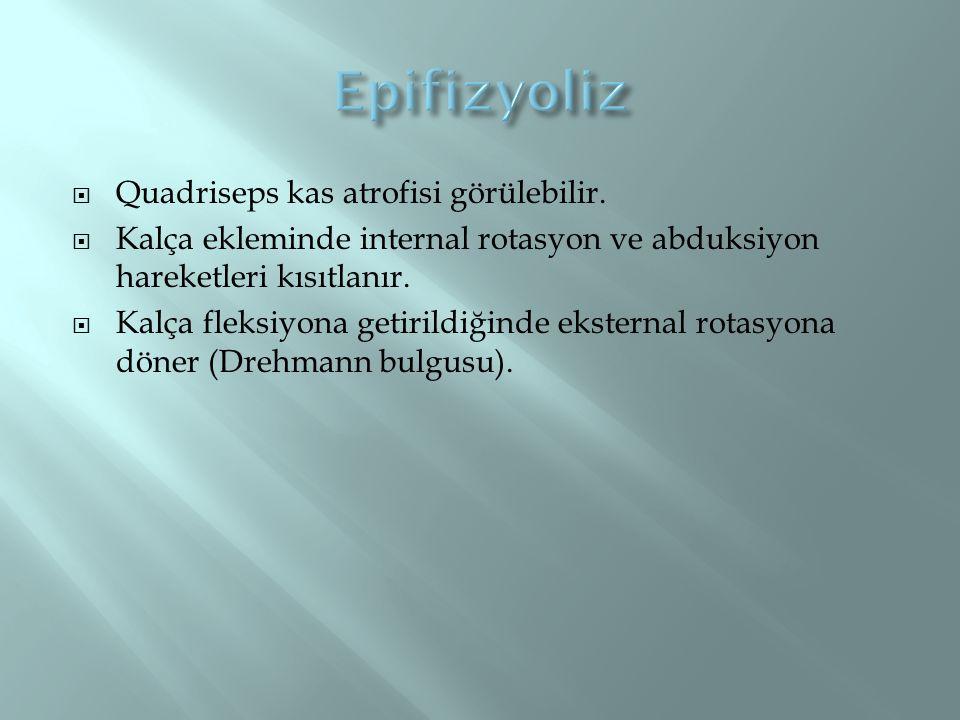 Quadriseps kas atrofisi görülebilir.  Kalça ekleminde internal rotasyon ve abduksiyon hareketleri kısıtlanır.  Kalça fleksiyona getirildiğinde eks