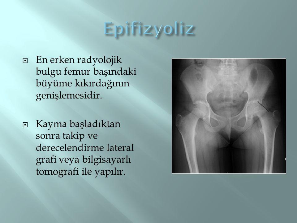  En erken radyolojik bulgu femur başındaki büyüme kıkırdağının genişlemesidir.  Kayma başladıktan sonra takip ve derecelendirme lateral grafi veya b