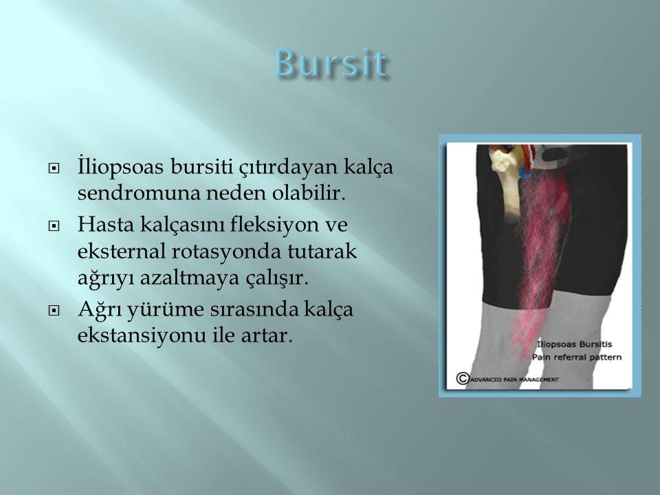  İliopsoas bursiti çıtırdayan kalça sendromuna neden olabilir.  Hasta kalçasını fleksiyon ve eksternal rotasyonda tutarak ağrıyı azaltmaya çalışır.