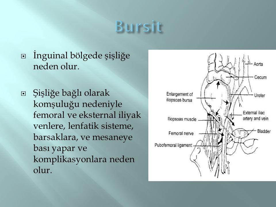  İnguinal bölgede şişliğe neden olur.  Şişliğe bağlı olarak komşuluğu nedeniyle femoral ve eksternal iliyak venlere, lenfatik sisteme, barsaklara, v