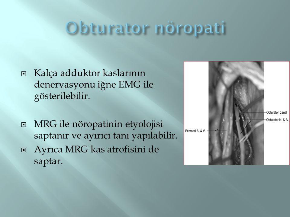  Kalça adduktor kaslarının denervasyonu iğne EMG ile gösterilebilir.  MRG ile nöropatinin etyolojisi saptanır ve ayırıcı tanı yapılabilir.  Ayrıca