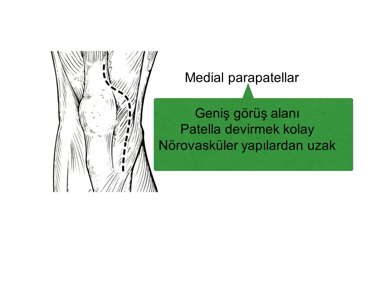 Medial parapatellar Geniş görüş alanı Patella devirmek kolay Nörovasküler yapılardan uzak