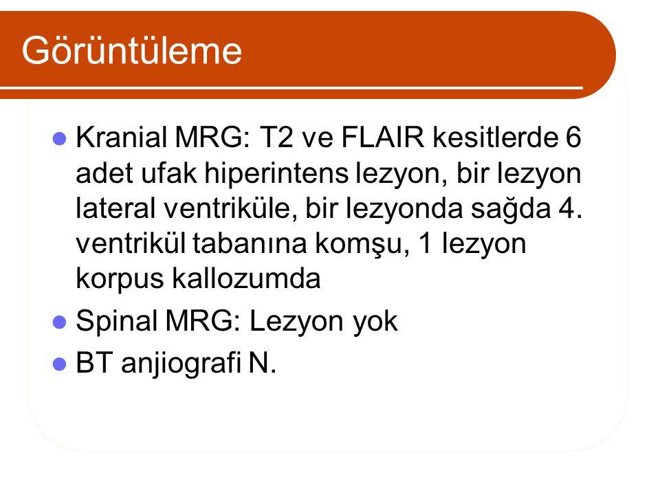 Görüntüleme Kranial MRG: T2 ve FLAIR kesitlerde 6 adet ufak hiperintens lezyon, bir lezyon lateral ventriküle, bir lezyonda sağda 4. ventrikül tabanın