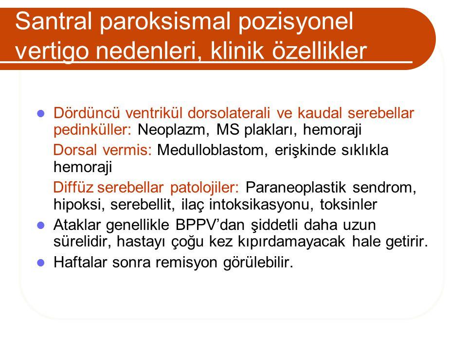 Santral paroksismal pozisyonel vertigo nedenleri, klinik özellikler Dördüncü ventrikül dorsolaterali ve kaudal serebellar pedinküller: Neoplazm, MS pl