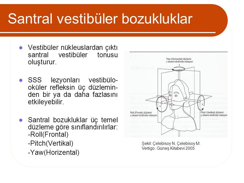 Santral vestibüler bozukluklar Vestibüler nükleuslardan çıktı santral vestibüler tonusu oluşturur. SSS lezyonları vestibülo- oküler refleksin üç düzle