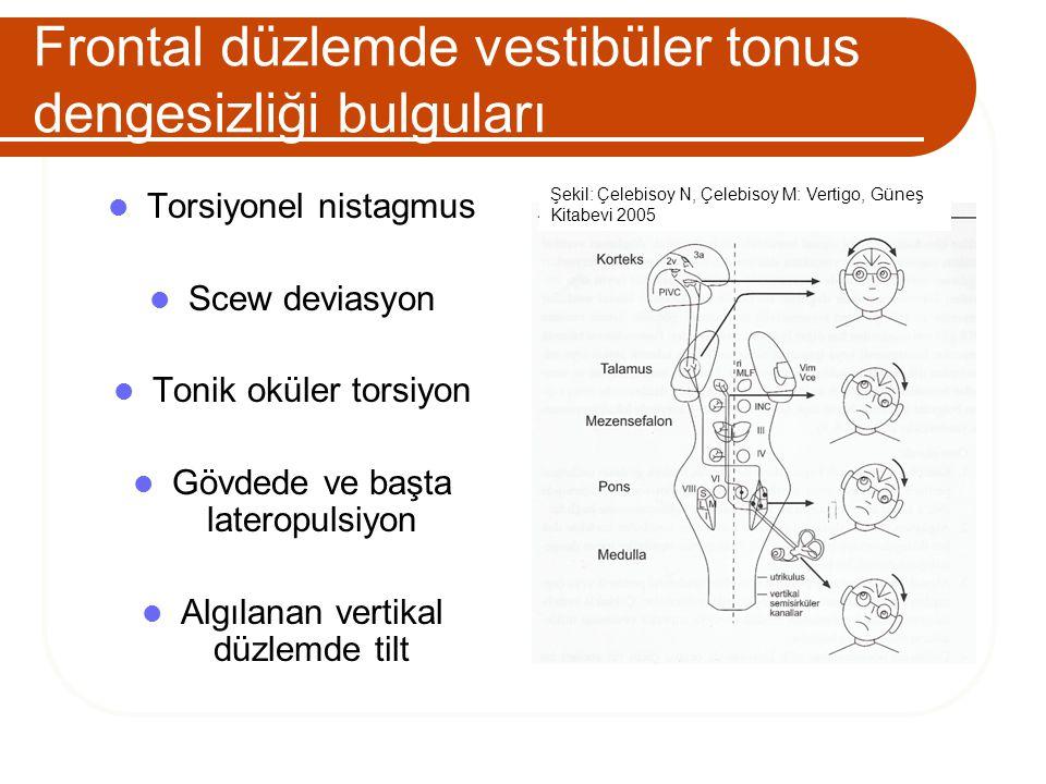 Frontal düzlemde vestibüler tonus dengesizliği bulguları Torsiyonel nistagmus Scew deviasyon Tonik oküler torsiyon Gövdede ve başta lateropulsiyon Alg
