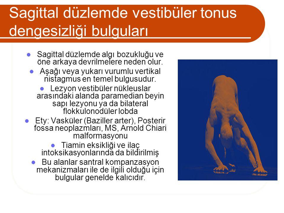 Sagittal düzlemde vestibüler tonus dengesizliği bulguları Sagittal düzlemde algı bozukluğu ve öne arkaya devrilmelere neden olur. Aşağı veya yukarı vu
