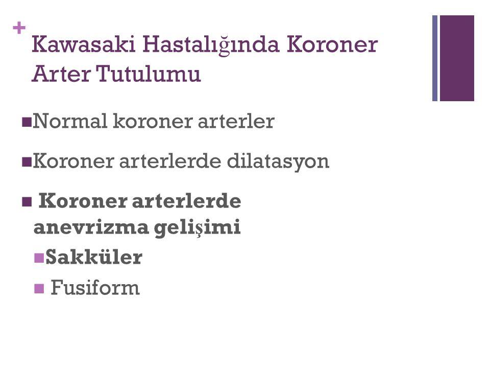 + Kawasaki Hastalı ğ ında Koroner Arter Tutulumu Normal koroner arterler Koroner arterlerde dilatasyon Koroner arterlerde anevrizma geli ş imi Sakküler Fusiform