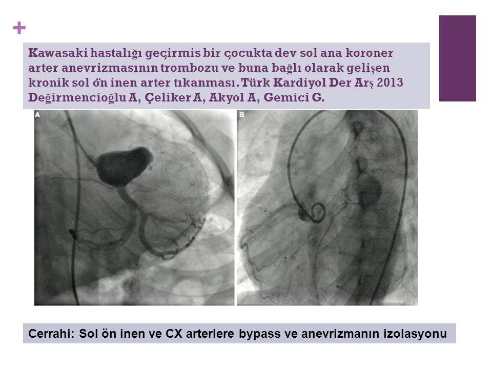 + Kawasaki hastalı ğ ı gec ̧ irmis bir c ̧ ocukta dev sol ana koroner arter anevrizmasının trombozu ve buna ba ğ lı olarak geli ş en kronik sol o ̈ n inen arter tıkanması.