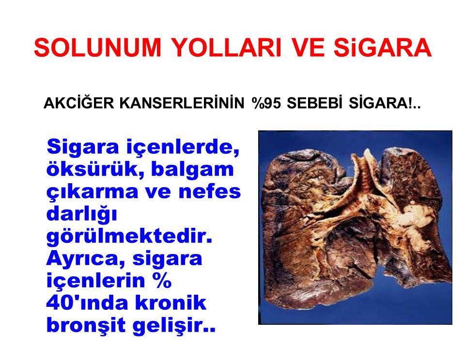 SOLUNUM YOLLARI VE SiGARA AKCİĞER KANSERLERİNİN %95 SEBEBİ SİGARA!..