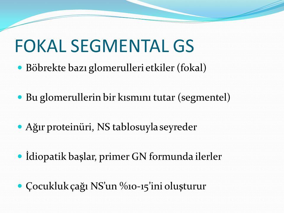 FOKAL SEGMENTAL GS Böbrekte bazı glomerulleri etkiler (fokal) Bu glomerullerin bir kısmını tutar (segmentel) Ağır proteinüri, NS tablosuyla seyreder İ
