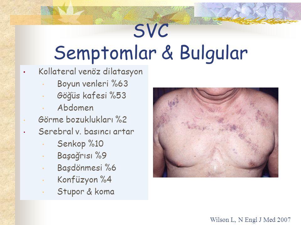 Kollateral venöz dilatasyon Boyun venleri %63 Göğüs kafesi %53 Abdomen Görme bozuklukları %2 Serebral v.