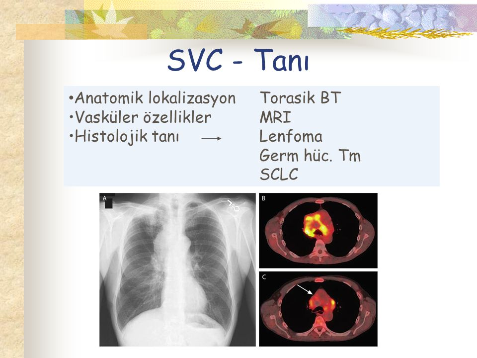 SVC - Tanı Anatomik lokalizasyonTorasik BT Vasküler özelliklerMRI Histolojik tanıLenfoma Germ hüc.