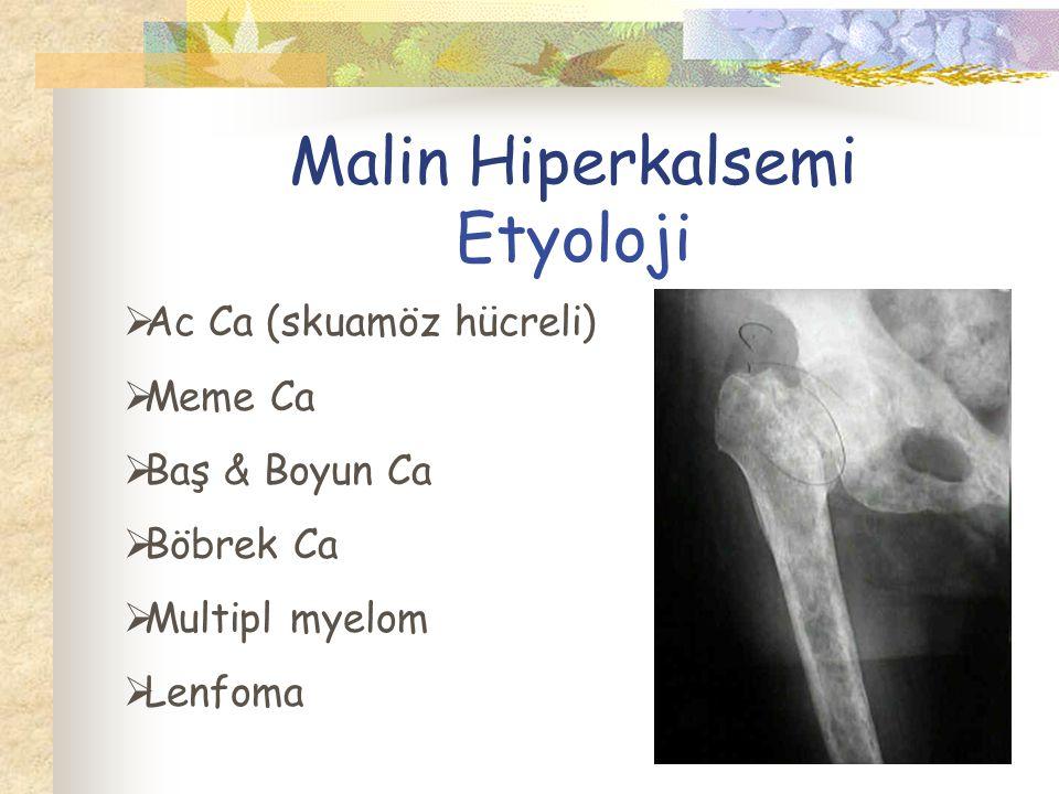Malin Hiperkalsemi Etyoloji  Ac Ca (skuamöz hücreli)  Meme Ca  Baş & Boyun Ca  Böbrek Ca  Multipl myelom  Lenfoma