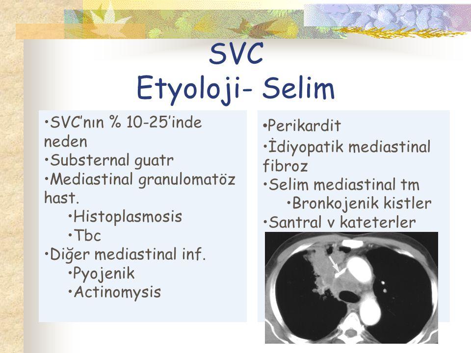 SVC Etyoloji- Selim SVC'nın % 10-25'inde neden Substernal guatr Mediastinal granulomatöz hast.