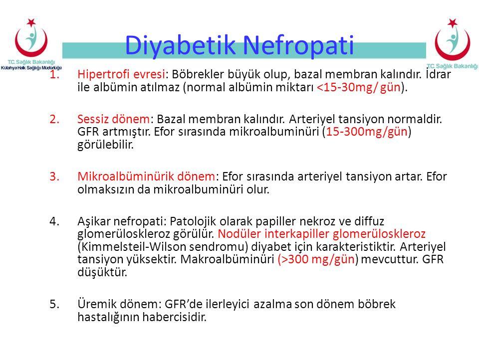 Diyabetik Nefropati 1.Hipertrofi evresi: Böbrekler büyük olup, bazal membran kalındır. İdrar ile albümin atılmaz (normal albümin miktarı <15-30mg/ gün