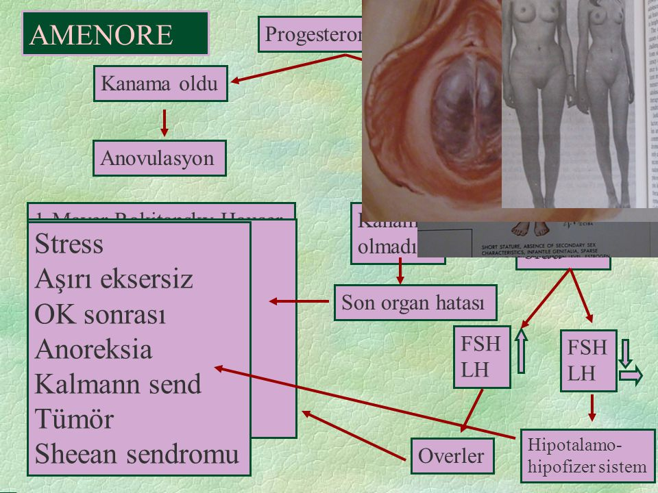 Progesteron 10 gün Kanama oldu Anovulasyon Kanama olmadı Estrogen 21 gün Progesteron 11-21 günler Kanama oldu Kanama olmadı Hipotalamo- hipofizer sist